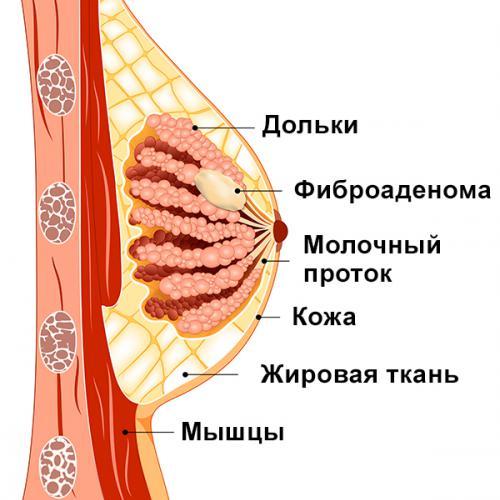 http://breastsurgeon.ru/sites/default/files/styles/blog_image_full/public/field/image/fibroadenoma_1.jpg