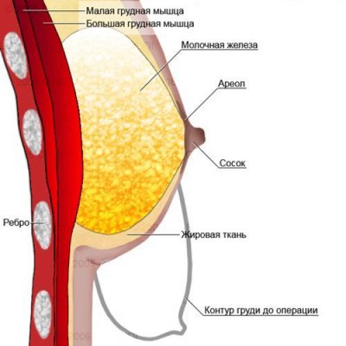 Операция по подтяжке груди